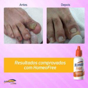 resultado-do-tratamento-de-micose-com-homeofree-combate-os-fungos-nao-mancha-a-unha-1000x1000