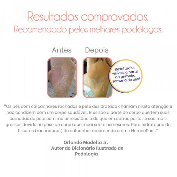 homeopast-dicas-de-podologia-manaus
